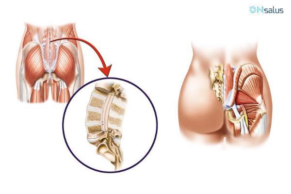 Ciatalgia: causas, síntomas y tratamiento