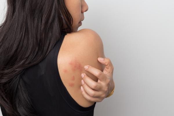 Sarpullido en la piel por nervios: causas y tratamiento