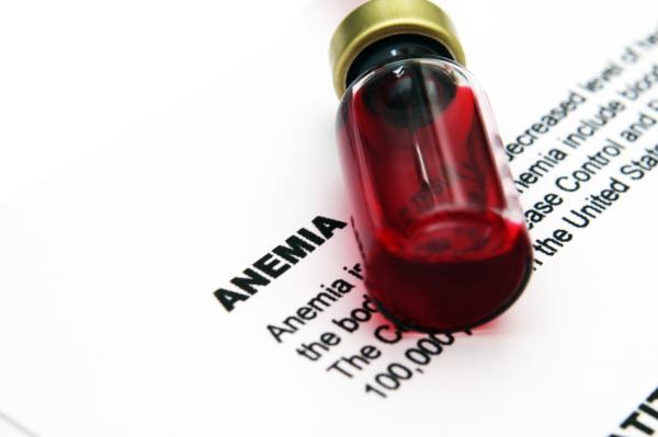 Anemia ferropénica: causas, síntomas y tratamiento - Causas de la anemia ferropénica