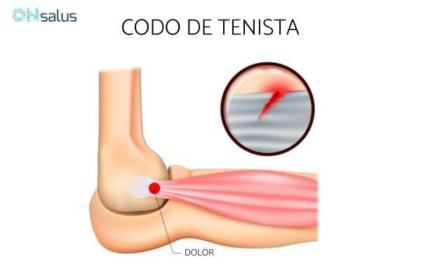Bulto en el codo: causas y tratamiento - Codo de tenista