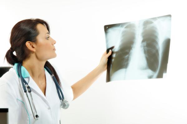 Manchas en los pulmones: causas y síntomas