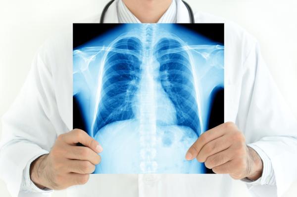 Manchas en los pulmones: causas y síntomas - Qué significa cuando hay una mancha en el pulmón