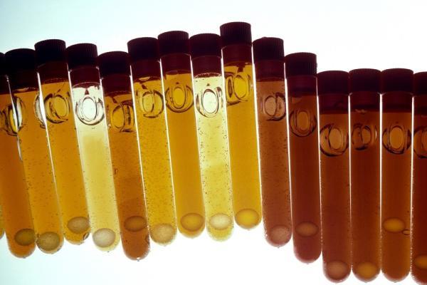 Bilirrubina baja: causas, síntomas y tratamiento