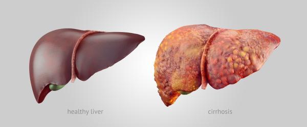 Tipos de cirrosis y sus causas - Tipos de cirrosis hepática