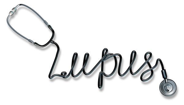 ¿El lupus es una enfermedad mortal?