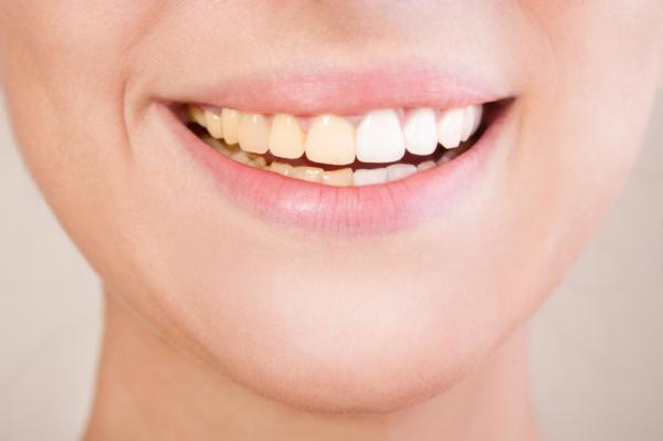 Alimentos que blanquean los dientes - ¿Por qué se manchan los dientes?