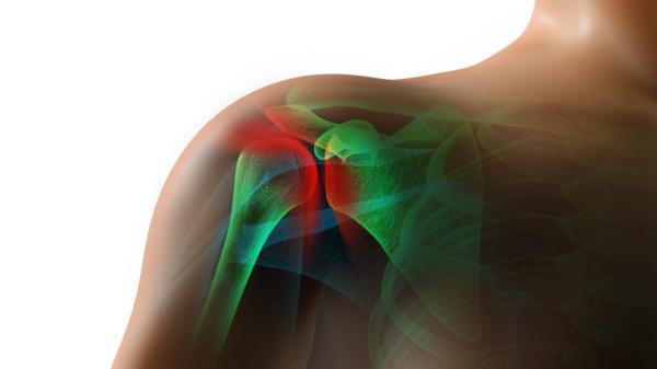 Calcificaciones en el hombro: tratamiento natural - Calcificaciones en el hombro: cómo se produce
