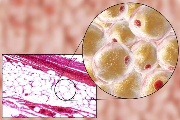 Tejido adiposo blanco: función, características y localización