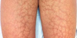 Por qué salen cabrillas en las piernas y cómo eliminarlas