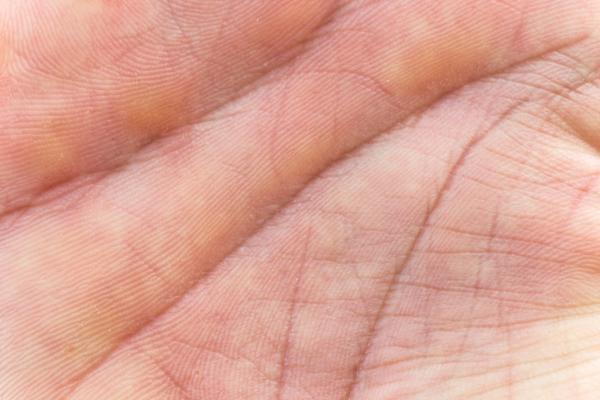 Manchas amarillas en las manos: causas y tratamiento