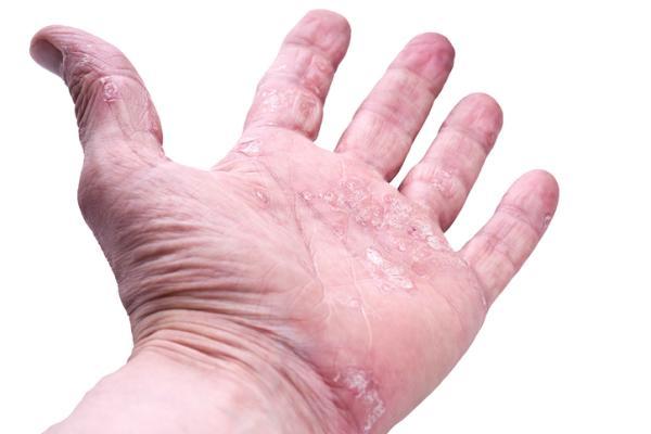 Cremas naturales para la psoriasis