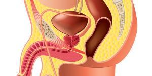 Epididimitis: causas, síntomas y tratamiento