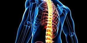 Mielitis transversa: síntomas, tratamiento, secuelas