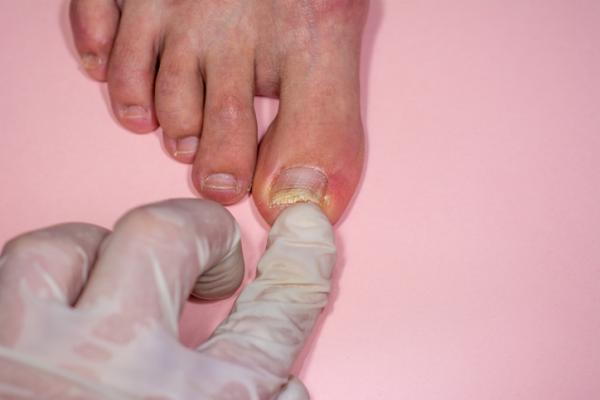 Cómo curar una uña levantada del pie