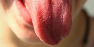 Por qué siento la lengua dormida