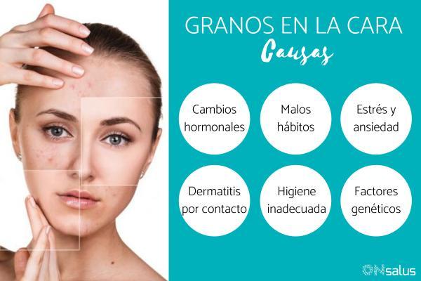 Granos en la cara: causas y remedios caseros - Causas de los granos en la cara