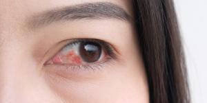 Lagrimal inflamado y picor: causas y tratamiento