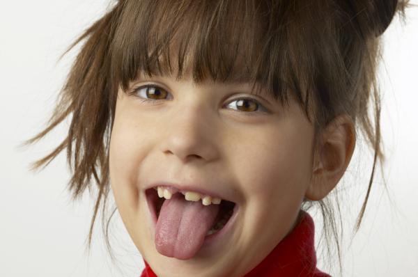 Por qué tengo los dientes torcidos - Por qué tengo los dientes torcidos - causas