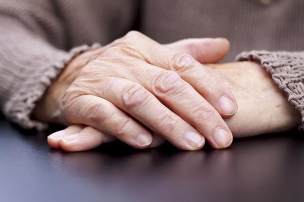 Resequedad en las manos: causas, tratamiento y remedios caseros - Resequedad en las manos: causas comunes