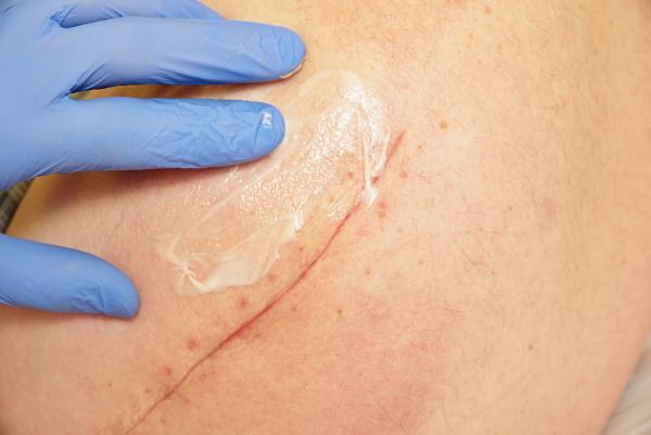 ¿Cuánto tarda en cicatrizar una herida quirúrgica? - Cuánto tarda en cicatrizar una herida quirúrgica