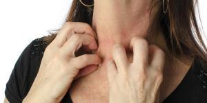 Manchas rojas en la piel que pican: causas y tratamiento