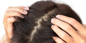 Resequedad en el cuero cabelludo: causas, tratamiento y remedios caseros