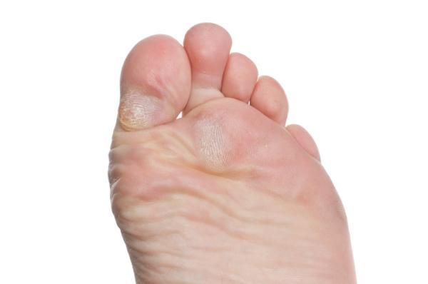 Cómo quitar los callos de la planta del pie