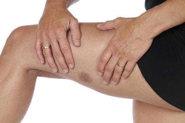 Mieloma múltiple: síntomas, tratamiento y esperanza de vida - Mieloma múltiple: síntomas