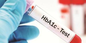 Cómo bajar la hemoglobina glicosilada naturalmente