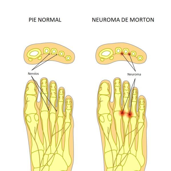 Cómo saber si tengo neuroma de Morton