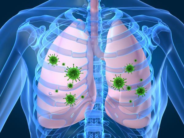 Dolor debajo del seno derecho: causas y tratamiento - Neumonía