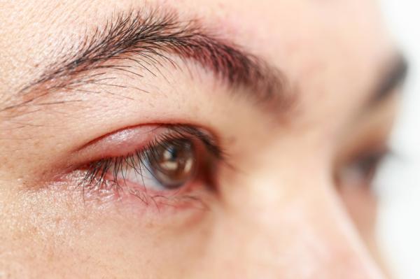Ardor en los ojos: causas y tratamiento - Ardor en los ojos y visión borrosa por infecciones