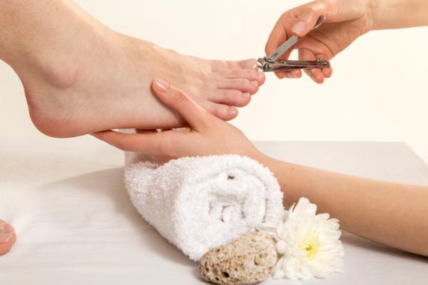 Por qué tengo la uña del dedo gordo del pie amarilla - Uña amarilla del dedo gordo del pie: tratamiento