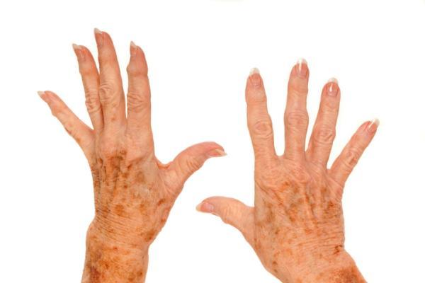 Esclerosis lateral amiotrófica: síntomas iniciales - Esclerosis Lateral Amiotrófica: síntomas iniciales