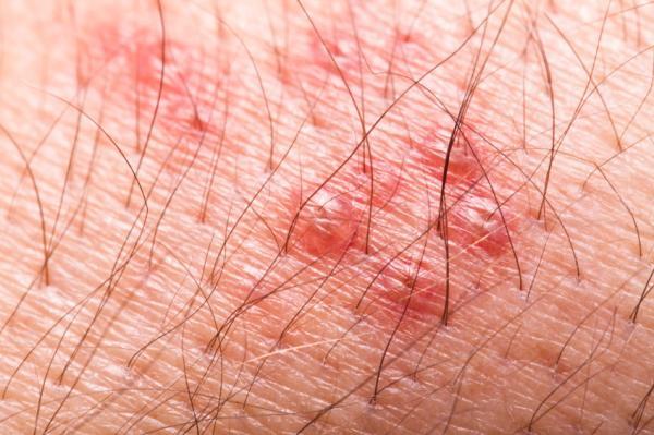 Pinchazos en el cuerpo: causas y tratamiento - Infección viral