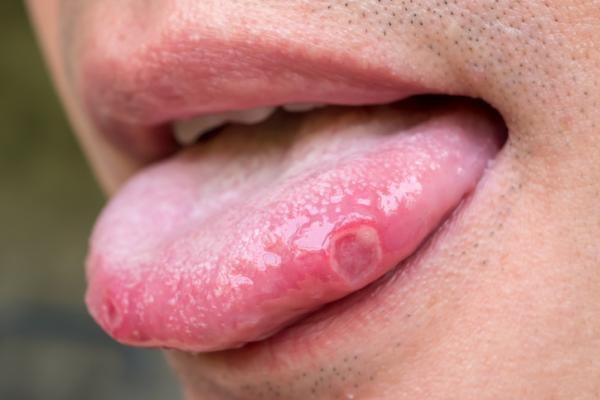 VPH en la boca: síntomas, tratamiento y cómo se contagia