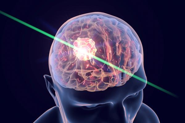 Dolor de cabeza y náuseas: ¿qué puede ser? - Dolor de cabeza con náuseas: otras causas