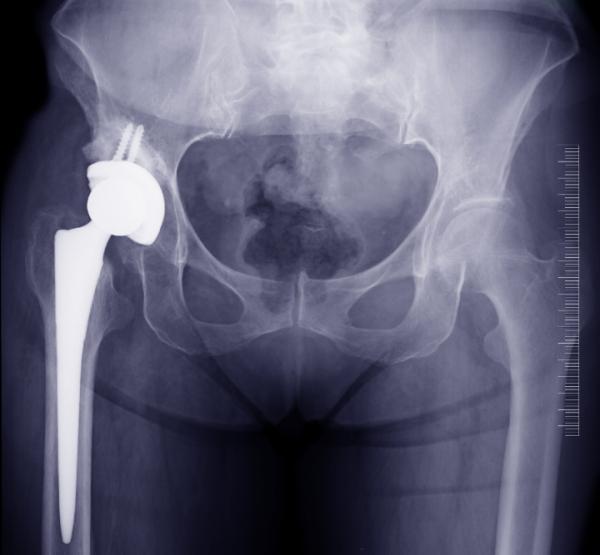 Dolor en la ingle al andar: causas y tratamiento - Bursitis