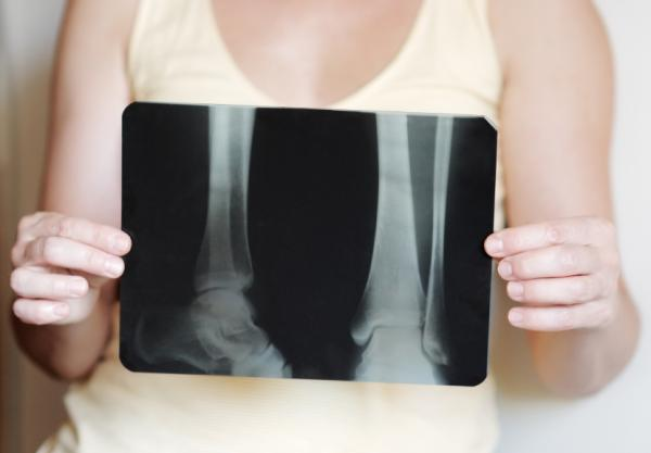 Displasia fibrosa: tipos, síntomas y tratamiento