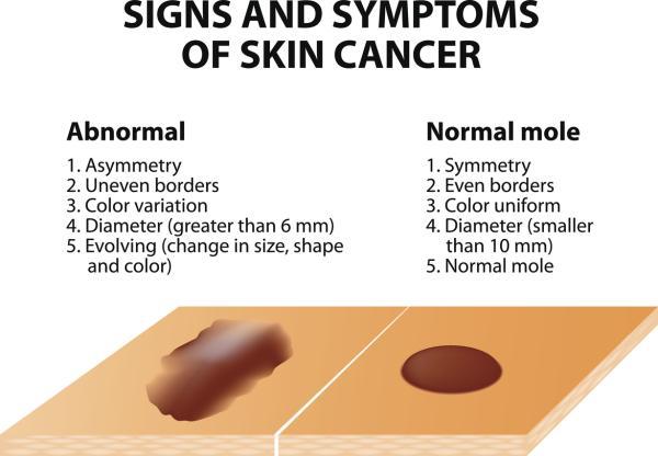 Manchas en las manos: por qué salen, tipos y cómo quitarlas - Manchas en las manos por cáncer de piel