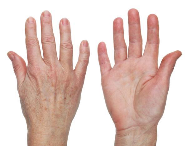 Manchas en las manos: por qué salen, tipos y cómo quitarlas