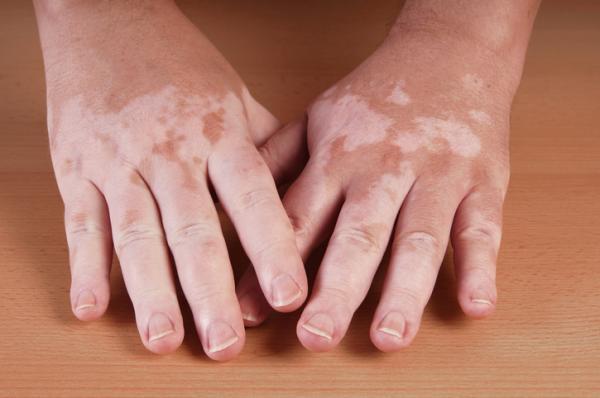 Manchas en las manos: por qué salen, tipos y cómo quitarlas - Tipos de manchas en las manos