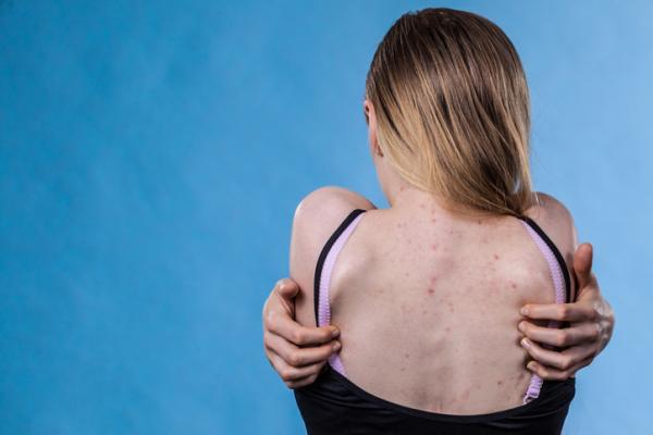 Cómo quitar manchas de acné en la espalda
