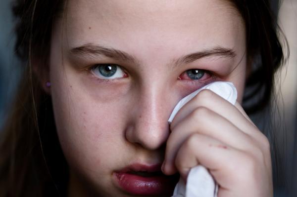 Por qué me escuecen los ojos al llorar - Conjuntivitis