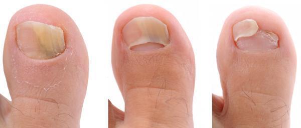 Cómo curar las uñas huecas de los pies - Por qué se ahuecan las uñas de los pies