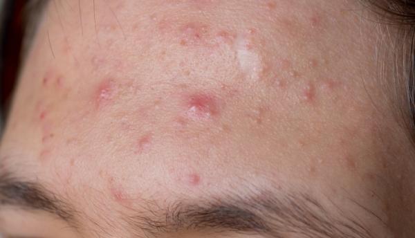 Aceite de onagra para el acné: beneficios y cómo tomarlo - Beneficios del aceite de onagra para el acné