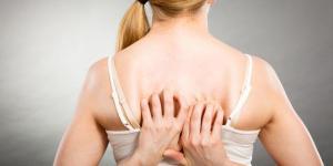 Espinillas en la espalda: por qué salen y cómo eliminarlas