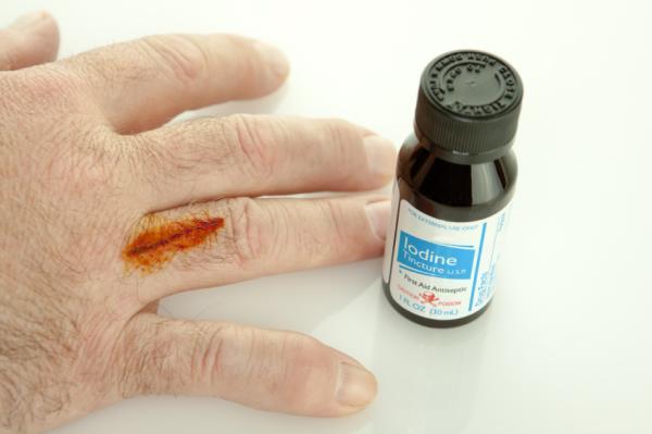 Cómo curar una herida infectada con puntos - Limpiar correctamente la herida con puntos