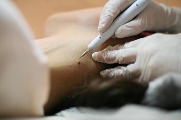 Lunares de carne en el cuello: causas y tratamiento - Cómo eliminar lunares de carne abultados en el cuello