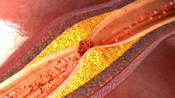 Infusiones que suben la tensión arterial - Causas y síntomas de hipertensión